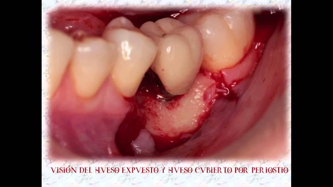 PYOGENIC GRANULOMA AND IMPLANTS .GRANULOMA EN IMPLANTE - Revista  MAXILLARIS. Maxillaris Revista Dental