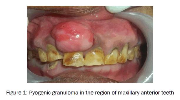 dental-sciences-maxillary-anterior-teeth