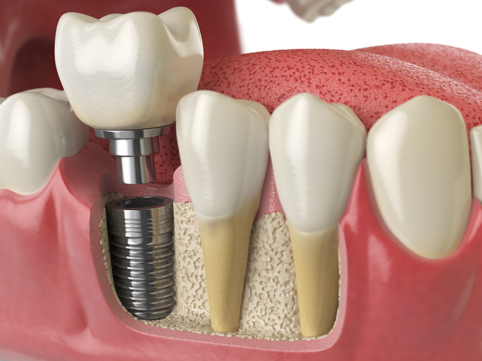Dental Implants Indianapolis and Carmel