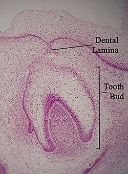 Dental lamina. Dentallamina11-17-05.jpg