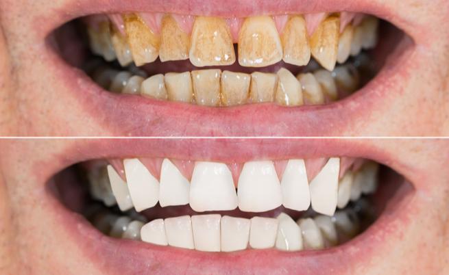 11 rimedi naturali per sbiancare i denti gialli