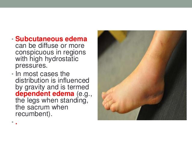INFLAMMATION • Acute inflammation • Chronic inflammation • Angiogenesis;  10. • Subcutaneous edema