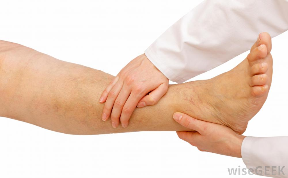 The most common sites for dependent edema are the legs and ankles.
