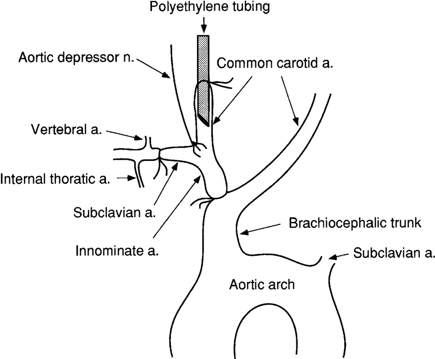 Anatomic schema for isolation of baroreceptor regions of right aortic depressor  nerve (ADN) in