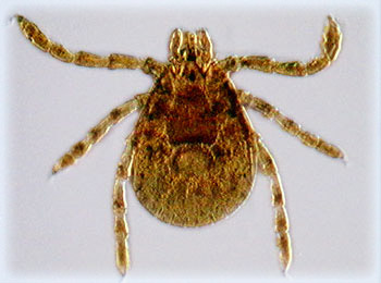Rocky Mountain Wood Tick (Dermacentor andersoni)
