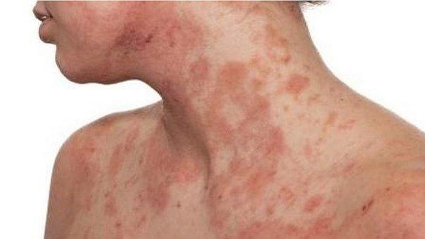 Dermatitis atópica: la enfermedad de la piel que genera depresión y  ansiedad