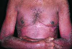 Exfoliative dermatitis | definition of exfoliative dermatitis by Medical  dictionary