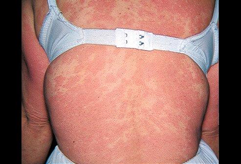 Picture of Dermatitis Medicamentosa (Back)