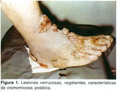 En el sitio de la inoculación aparece una pápula o placa que desarrolla en  semanas o meses, adquiriendo forma verrucosa. Las lesiones antiguas se  aclaran en