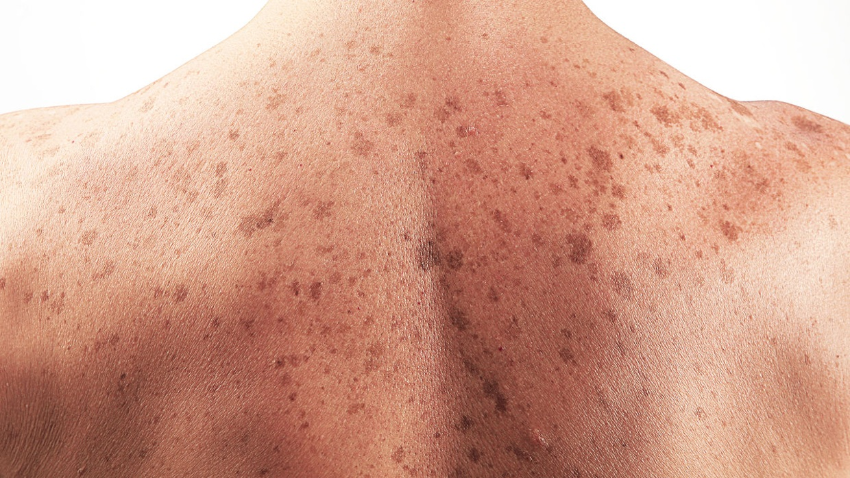 Malignant , Dermatofibroma , dermatoheteroplasty , Dermat.