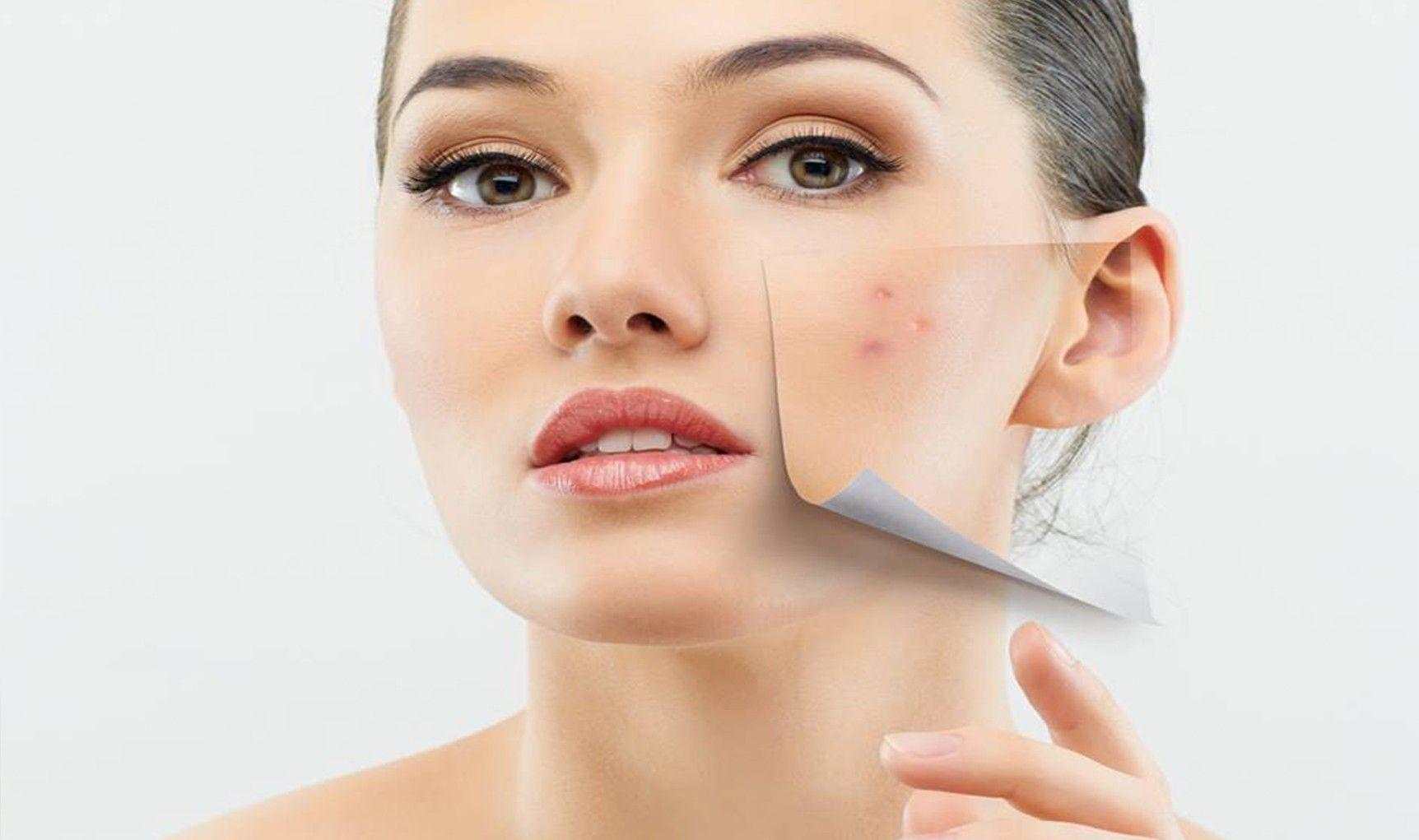 Dermatological Diseases Photo