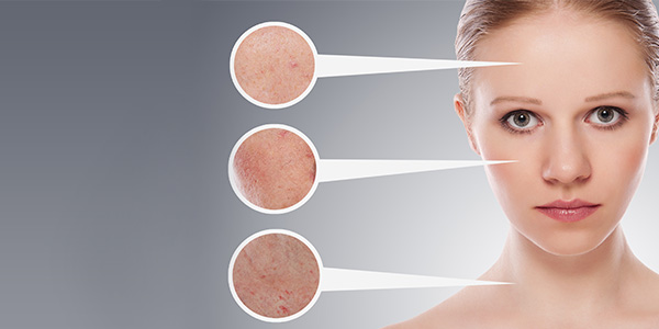 Dermatology Products by Chronic Conditions