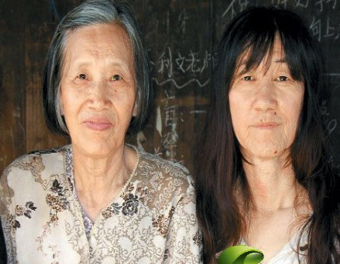 In addition, some patients may also show premature ageing of their body  organs like the hearts and lunds. Below are three sufferers from China.