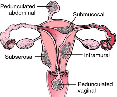 dermatomyoma