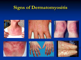 References. Dermatomyositis.