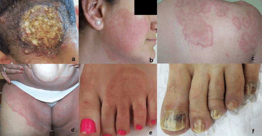 Clinical manifestations of dermatophyte infections. Full color available  online. (a) Erythematous nodule with suppurative discharge and loss of hair  due to