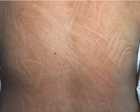 Dermographic urticaria resulting from pressure through clothing.