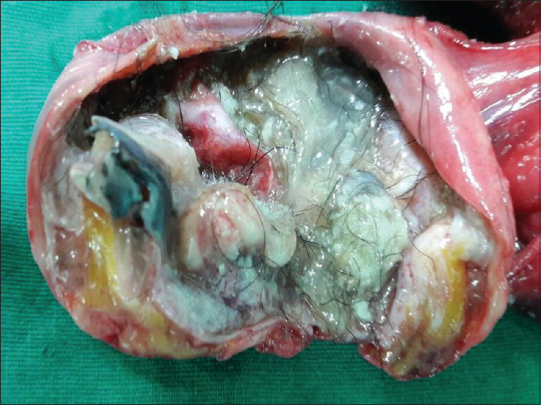 Figure 1: Cut section of right ovarian dermoid cyst showing hair, bone,