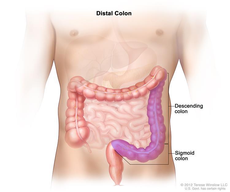 The distal colon includes the descending colon and the sigmoid colon.