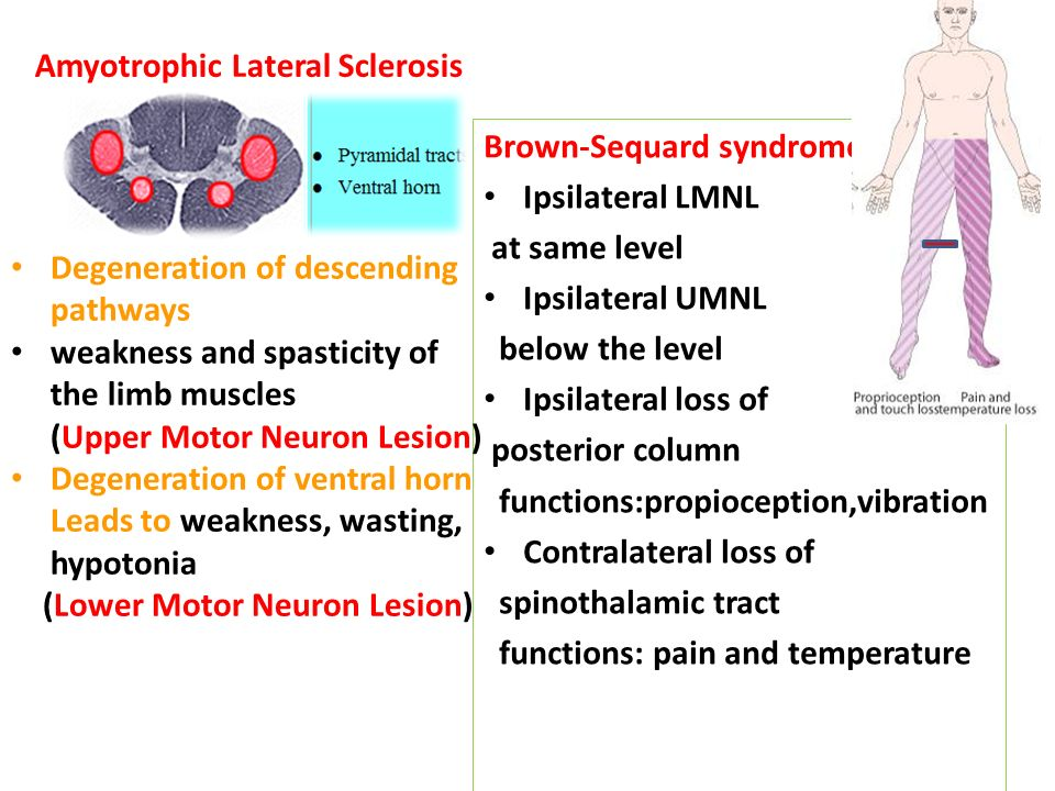 29 Amyotrophic Lateral Sclerosis