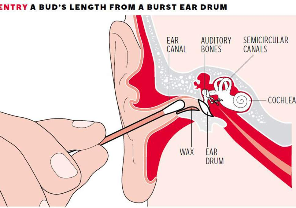 The ear canal leads to a number of sensitive bones and organs which can be  harmed