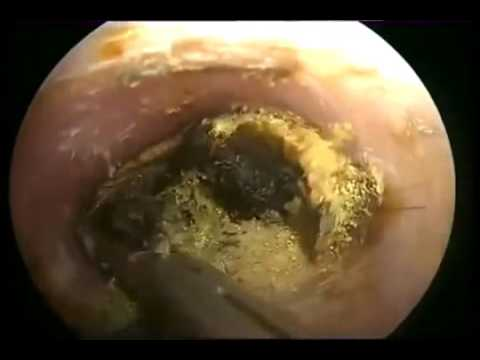 WAX STONE REMOVAL FROM EAR!