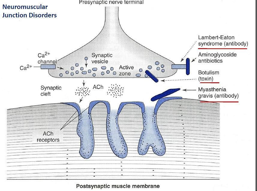 eaton-lambert syndrome