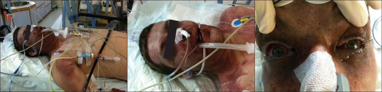 Figure 1: Physical appearance at hospital admission was characterized by  purple cyanotic craniofacial congestion with cervicofacial and  subconjunctival