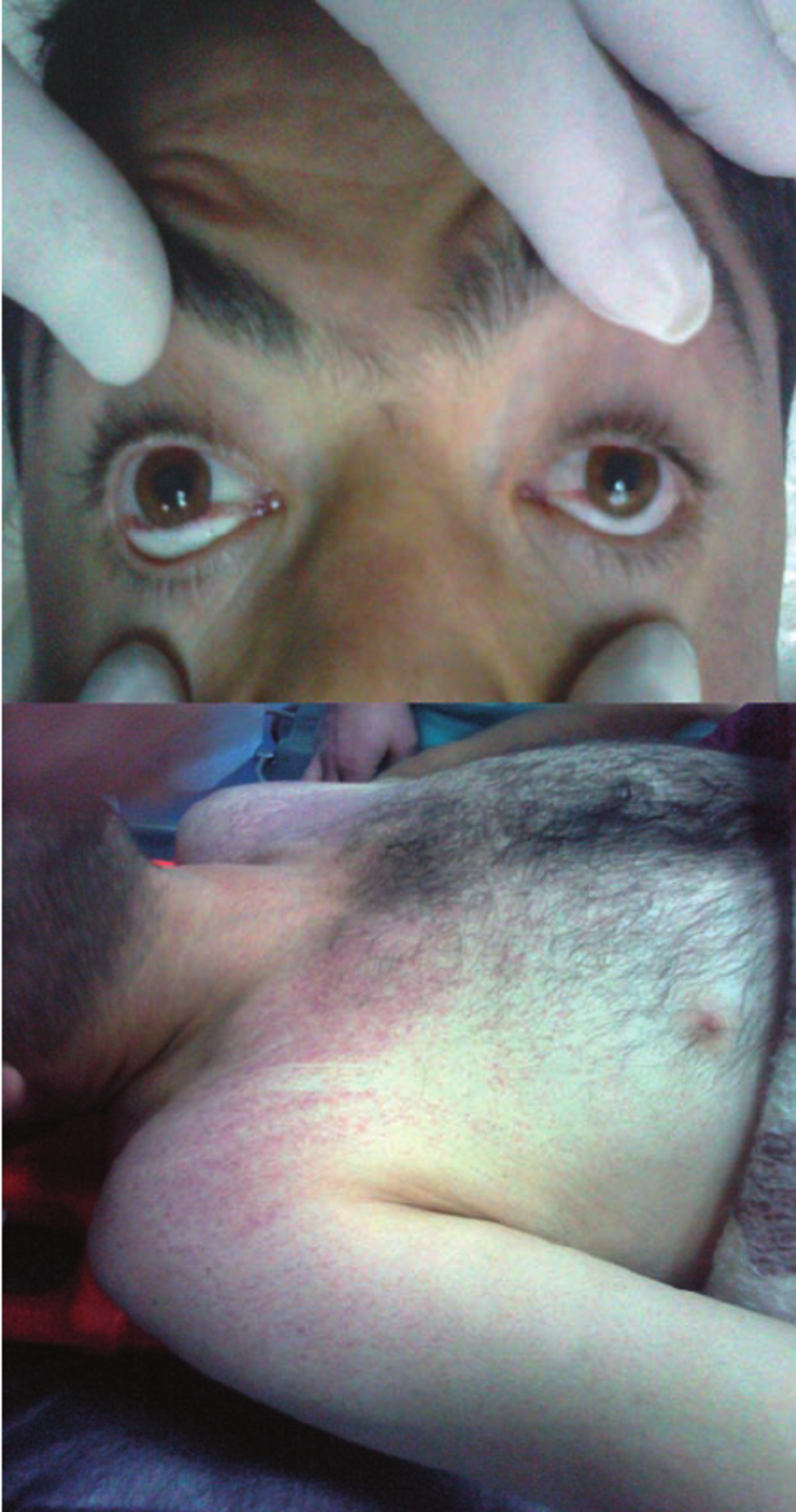 Petechial haemorrhages on conjunctivas and chest.