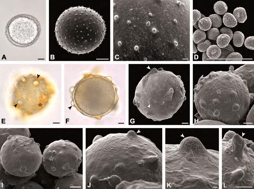 Echinate and verrucate type. A–D. A. mangelsdorffii; A. Echinate |  Download Scientific Diagram