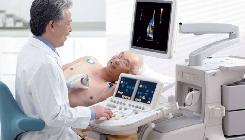 how long does an echocardiogram take