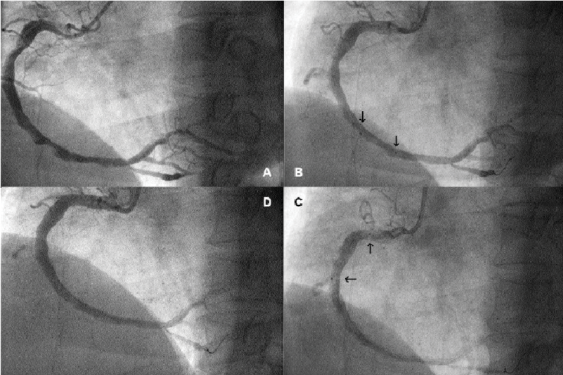 A . Coronary angiogram showing a dominant and ectatic RCA with two discrete  lesions at the 2nd and 3rd segments of the RCA. B. Position of the Blazer®  bare