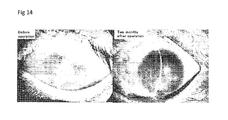 ectocornea