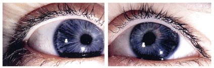 Case 1: bilateral ectopia pupillae. The pupil of each eye is displaced  towards the