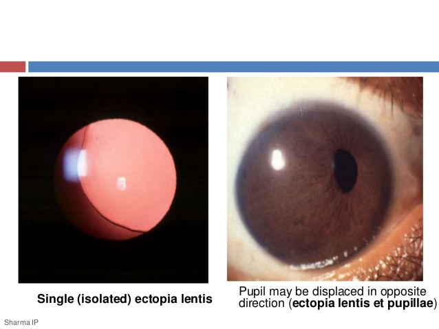 Pupil may be displaced in opposite Single (isolated) ectopia lentis  direction (ectopia lentis et pupillae) Sharma IP
