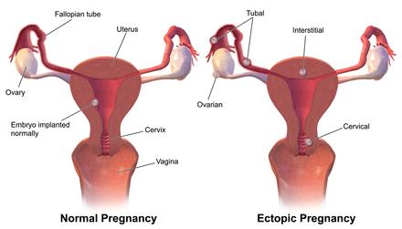 Ectopic pregnancy.