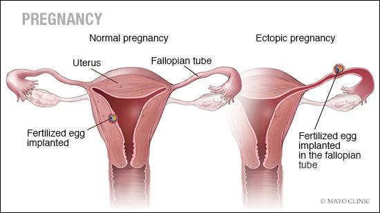 According to Dr. Tarek Khalife, a Mayo Clinic Health System OB-GYN  physician, ectopic pregnancies are rare. However, he says in the off chance  an ectopic