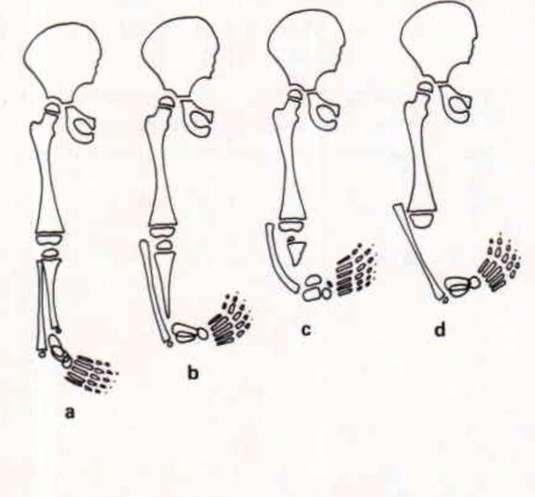 Distal form of ectromelia. a, Tibia | O&P Digital Resource Library