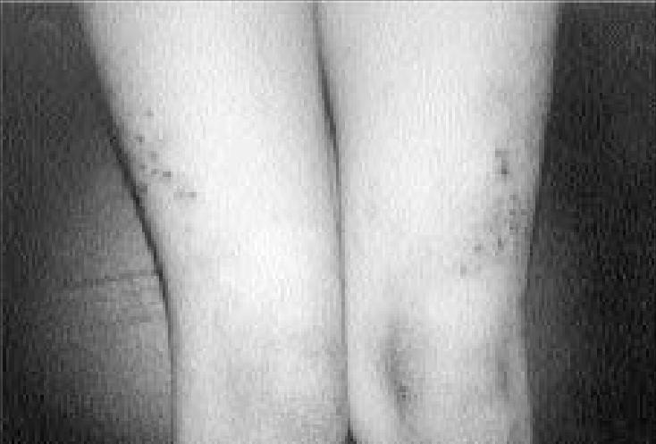 eczematoid