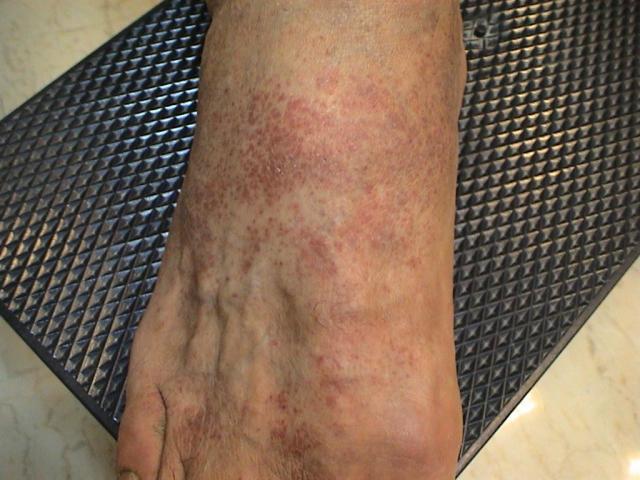 DISEASE OF THE BLOOD AND THE VESSELS – PURPURAS - Eczematoid purpura of  Duka-Kapetanaki