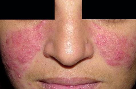 eczematous