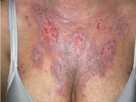 Chronic eczematous dermatitis in case 5.