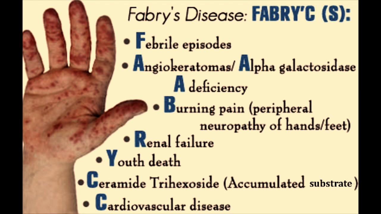 fabry