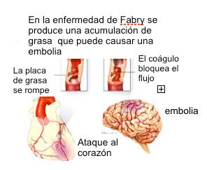 El crecimiento del ventrículo izquierdo del corazón, la falla de la válvula  mitral (insuficiencia mitral) y anormalidades en la conducción eléctrica de  los