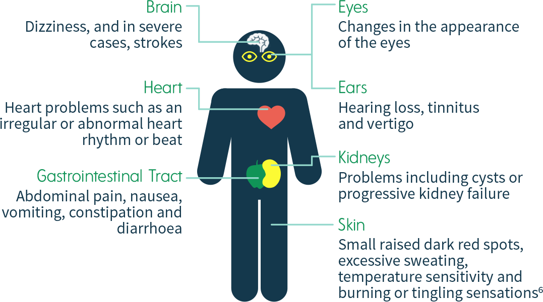 Signs and symptoms of Fabry disease