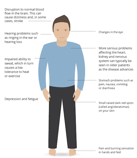 View the signs and symptoms of Fabry disease and their multi-systemic  effects