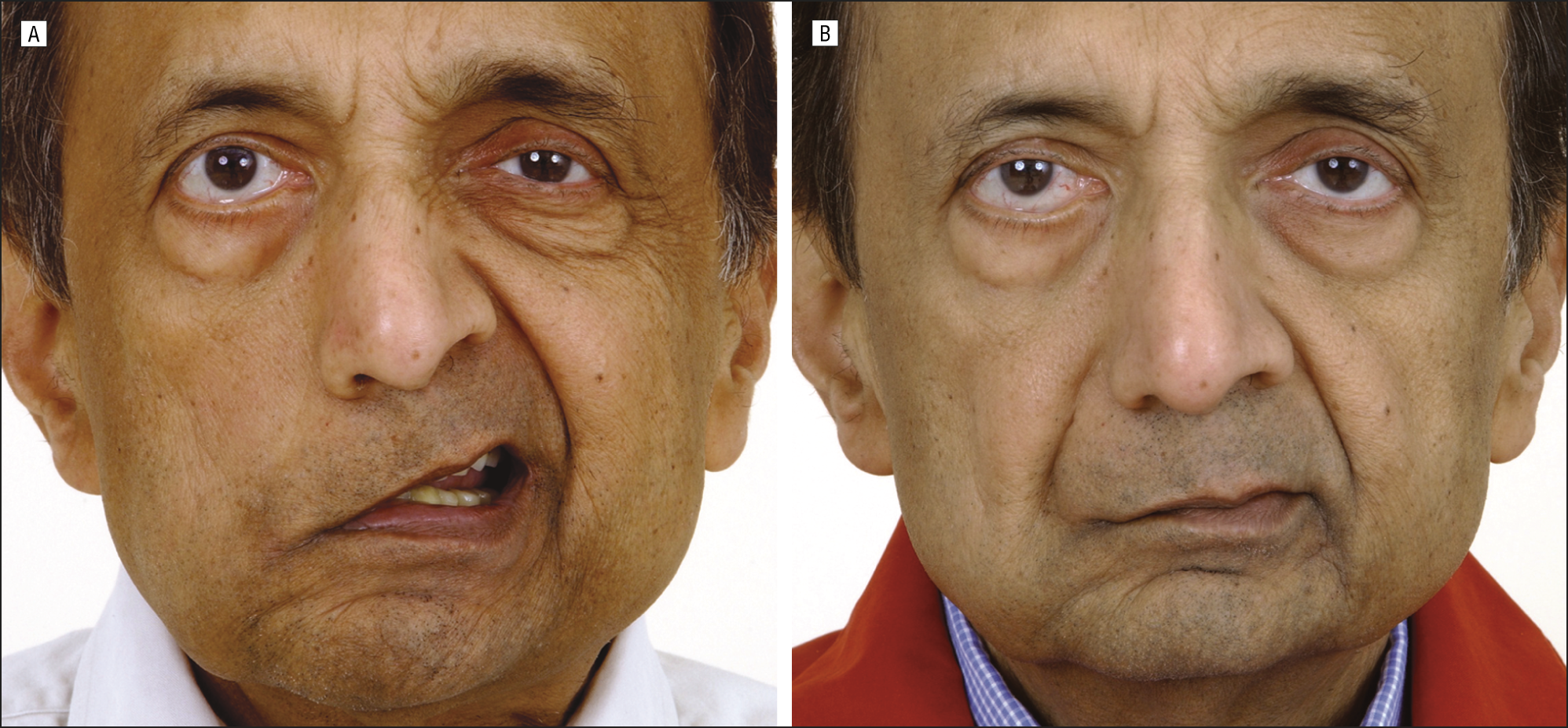 Patient with a history of long-standing facial hemiplegia from a stroke is  shown here