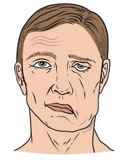 UW Health Facial Nerve Paralysis: Flaccid facial paralysis