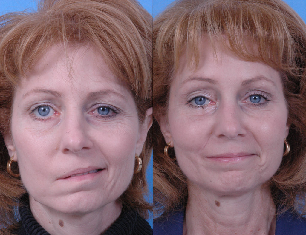 Woman with partial facial paralysis