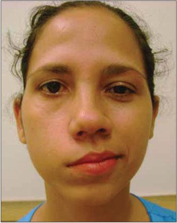 facial hemiplegia